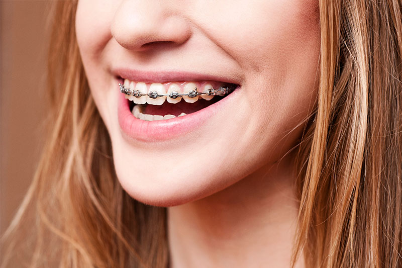 Orthodontics - Sierra Dental Care, San Dimas Dentist