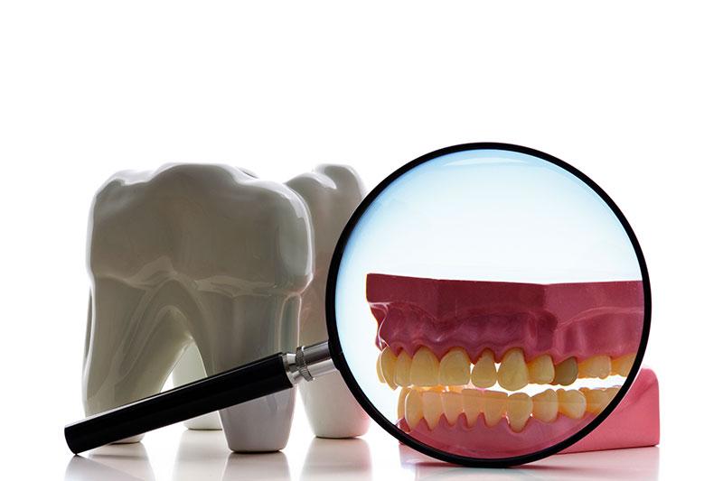 Root Canal - Sierra Dental Care, San Dimas Dentist