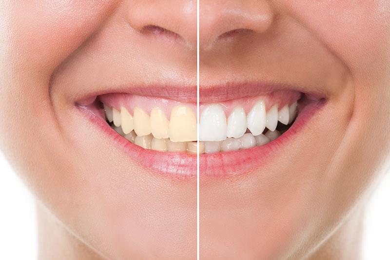 Teeth Whitening - Sierra Dental Care, San Dimas Dentist